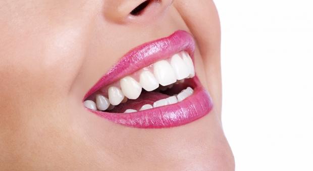 Dişlerdeki Sarı Lekelere Elvada