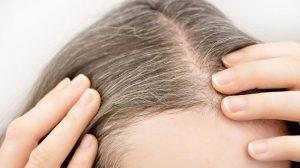 Saçlardaki Beyazları Kapatan Doğal Formül 1