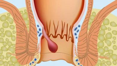 Basur (Hemoroid) İçin Hangi Doktora Gidilmelidir?