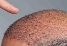 Organik Gold Fue İle Ekilen Saçlar Daha Sağlıklı Mı Olur?